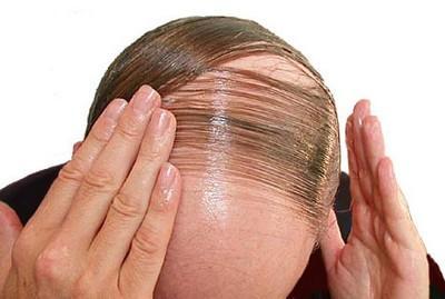 signály nedostatku proteínu, rednutie a strácanie vlasov